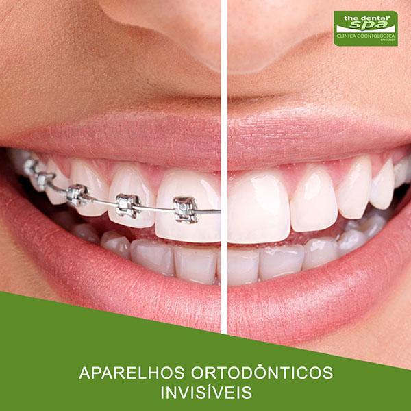 aparelhos-ortodonticos-invisiveis-